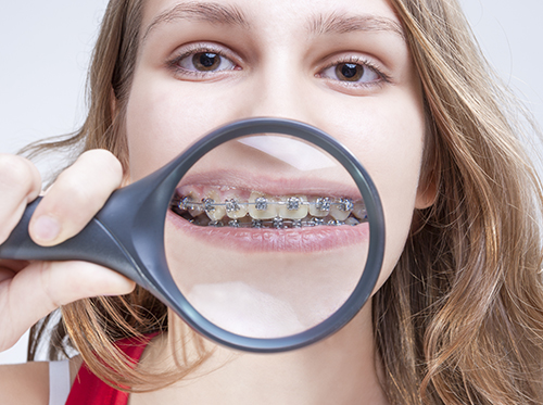Do it yourself orthodontics is it for me we have been monitoring the recent development of direct marketing orthodontic treatment to the public solutioingenieria Images