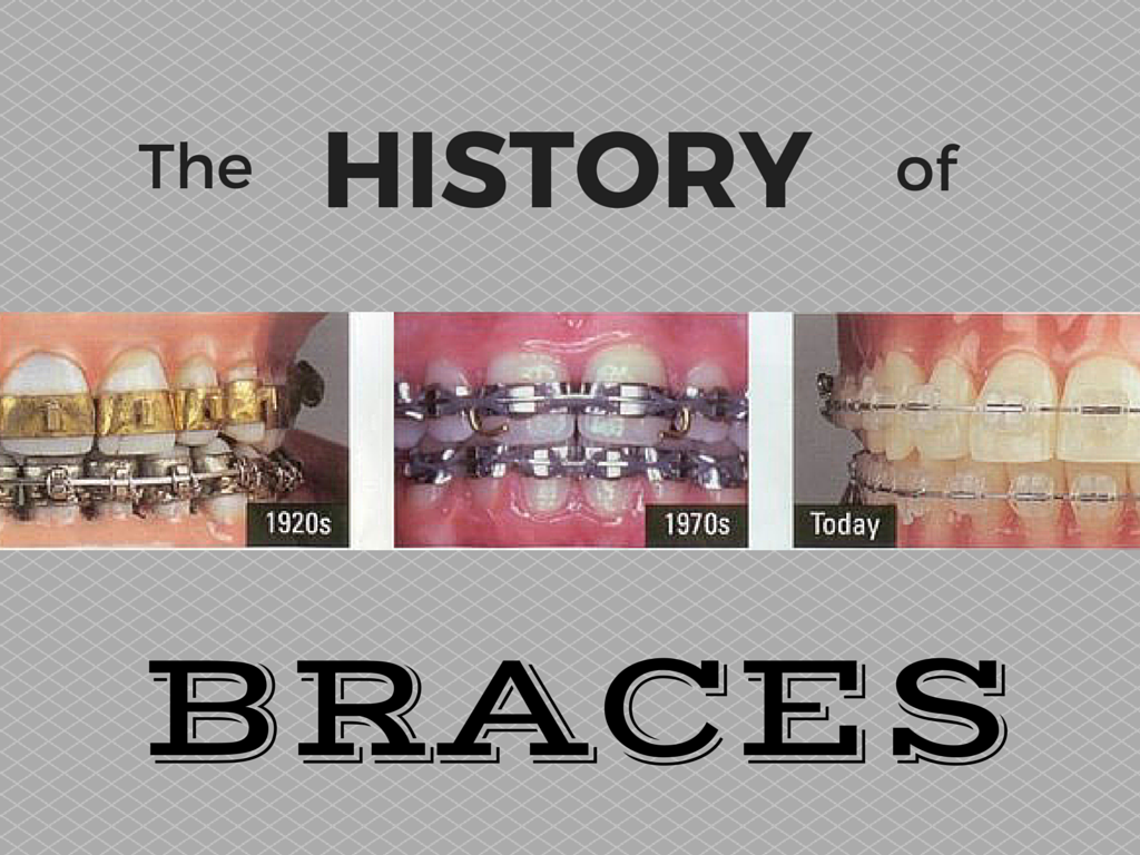 The Evolution Of Braces