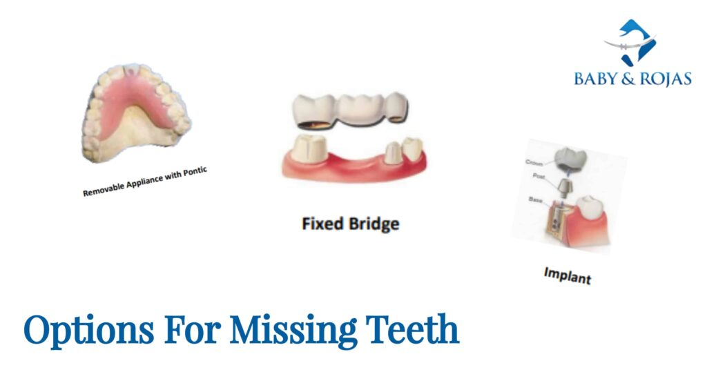 options for missing teeth, bridge, gaps in teeth