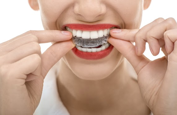 History of Invisalign