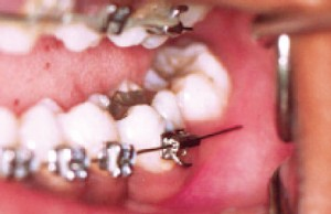 wire sticking out from braces