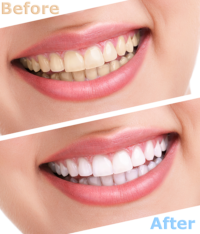Teeth Whitening Omaha NE | Best Dentists Omaha NE