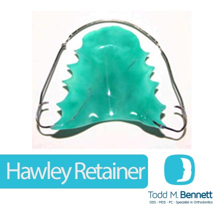 Hawley Retainer for blog