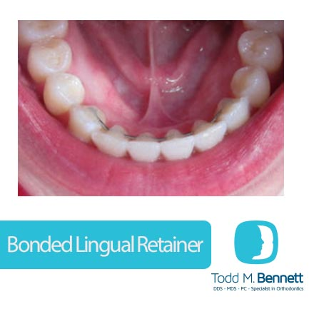 TBO_bonded lingual retainer blog