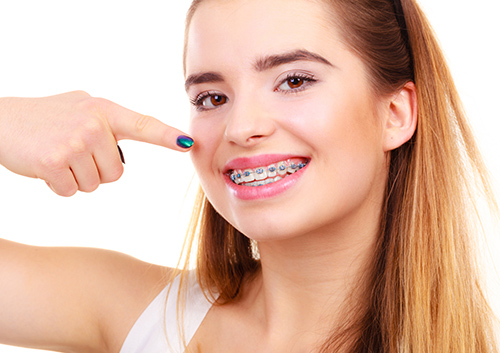 56f864f68c3 When we think braces, we can't help but think of the brackets on each tooth  and the colorful ligature bands that surround them.