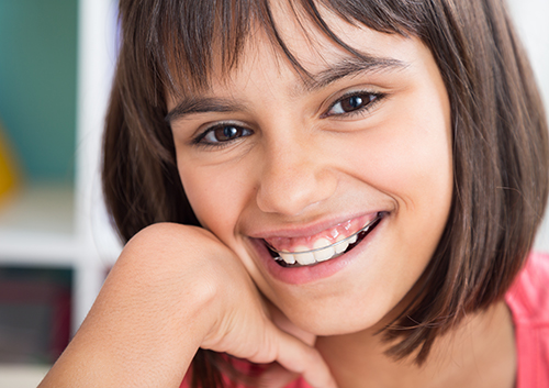 65133c9fb91 If your pre-teen or teenager is home for the summer, it's easy to provide  braces-friendly lunch options. The school lunchroom, though, presents  another ...