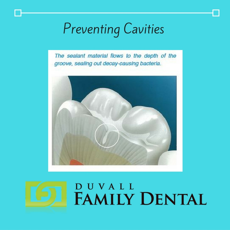 Dental sealants the simple way to prevent cavities