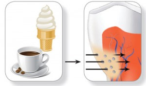 exposed roots and dentin teeth causes and treatments