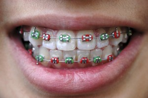 red and green bands on braces