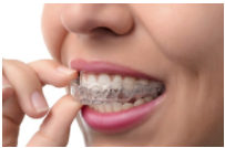 Invisalign trays for your teeth.