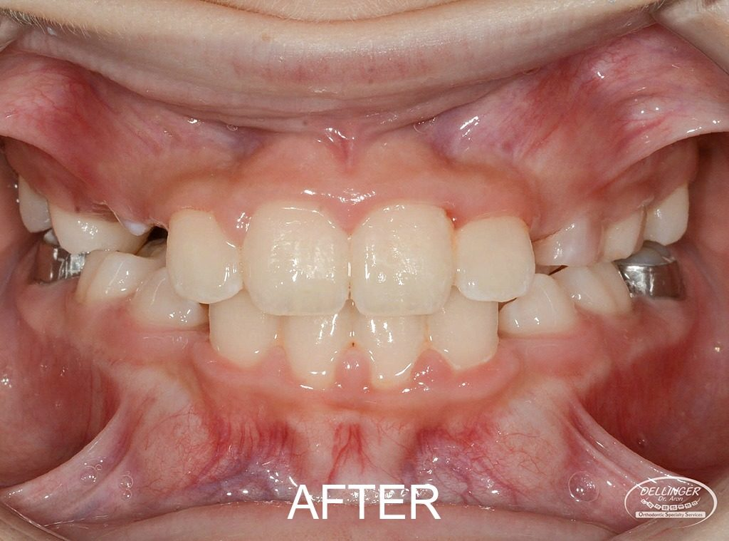 Dr. Aron Dellinger - Posterior crossbite resolved after Phase I treatment.