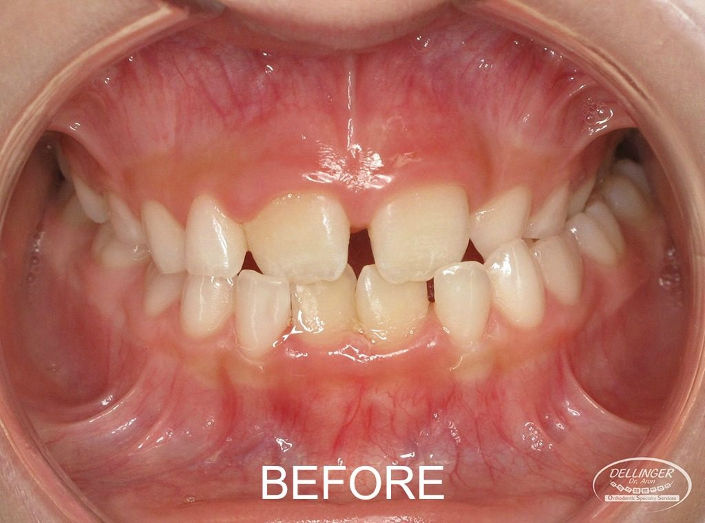 Dr. Aron Dellinger - Posterior crossbite before Phase I treatment.
