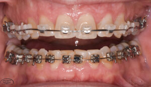 Orthodontic Specialty Services - Dr. Aron Dellinger Adult Orthodontics
