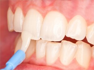 cheap for discount 7ef2c b8f74 Fluoride is a compound that contains fluorine, a natural element. Using  small amounts of fluoride on a regular basis can help prevent tooth decay.