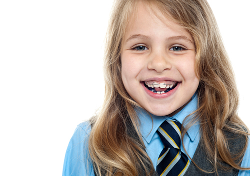 fbf206095 Two-phase orthodontic treatment involves two separate and distinct periods  that your child receives orthodontic treatment. It allows your son or  daughter to ...