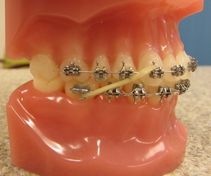 Elastics Rubber Bands Durrett Orthodontics Blog