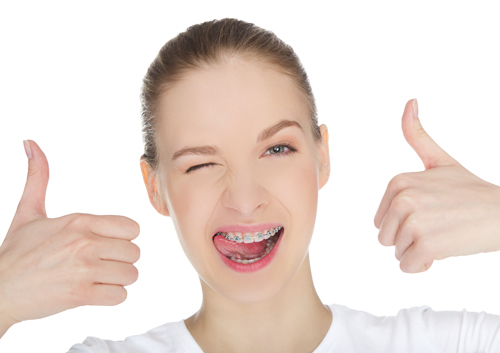 Five fun ways to countdown your braces time
