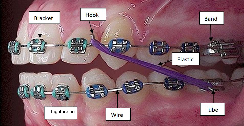 Do you know the parts of your braces and why its important bracket small attachments that are bonded to your teeth brackets hold the archwire in place ccuart Choice Image