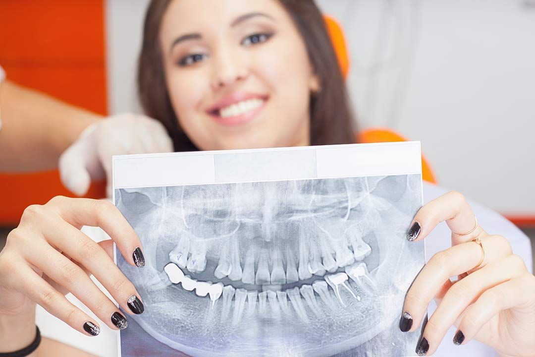 Woman holding dental xray facing camera. The Xray shows dental implants are healing.