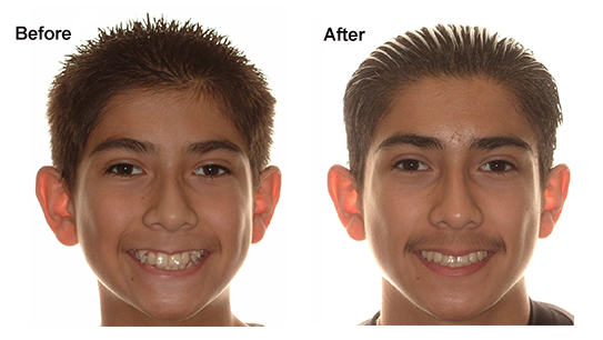 When Are Orthodontic Extractions Necessary