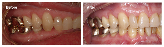 Overbite And Gum Recession Save Your Gums With Invisalign
