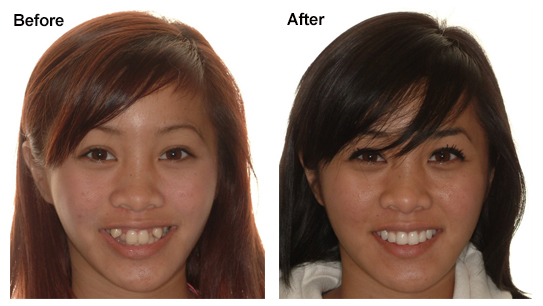 Extraction versus non extraction orthodontic treatment