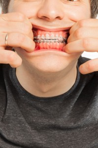 GKG orthodontics - dealing with pain from braces