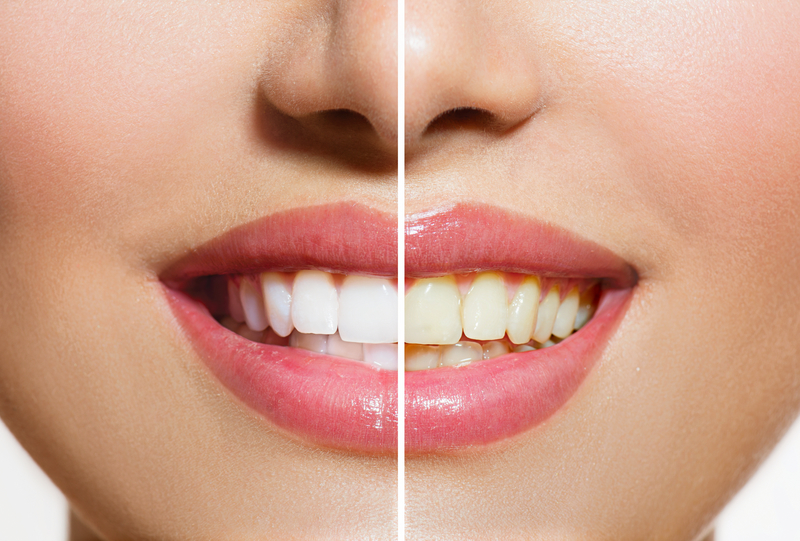 Do Whitening Toothpastes Actually Work