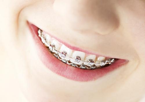 our blog premier orthodontics oxnard thousand oaks carpinteria ca