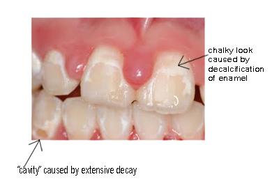 Our Blog Natick Ma Lakewood Park Orthodontics