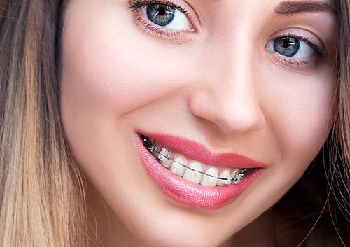 Our Blog - Orthodontist - St  Petersburg & Seminole FL