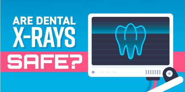 are dental xrays safe