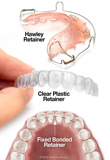 How To Get Retainers?