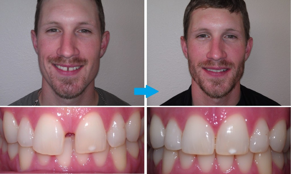 Invisalign Before And After Gap Invisalign: Closing th...