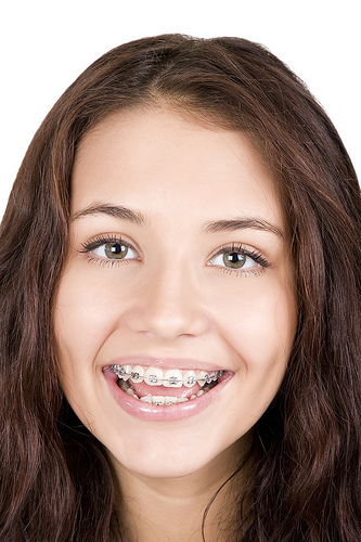 Purchasing braces in college?