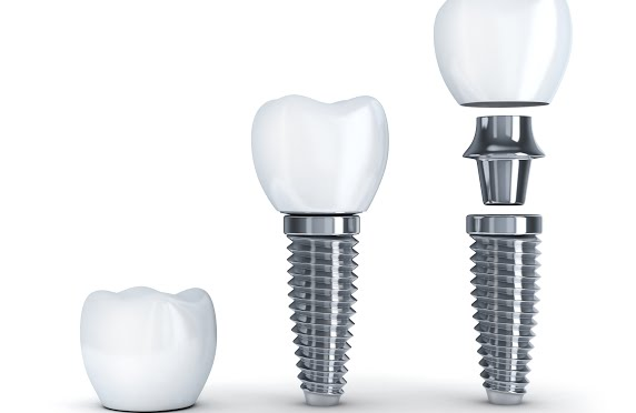 The Cost of Dental Implants: What You Need To Know