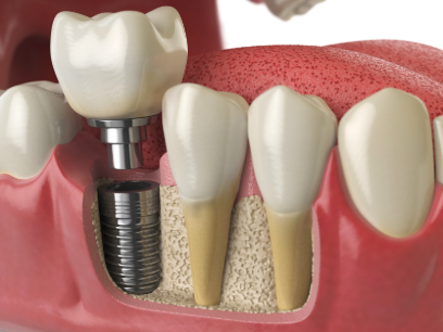 single-tooth dental implant