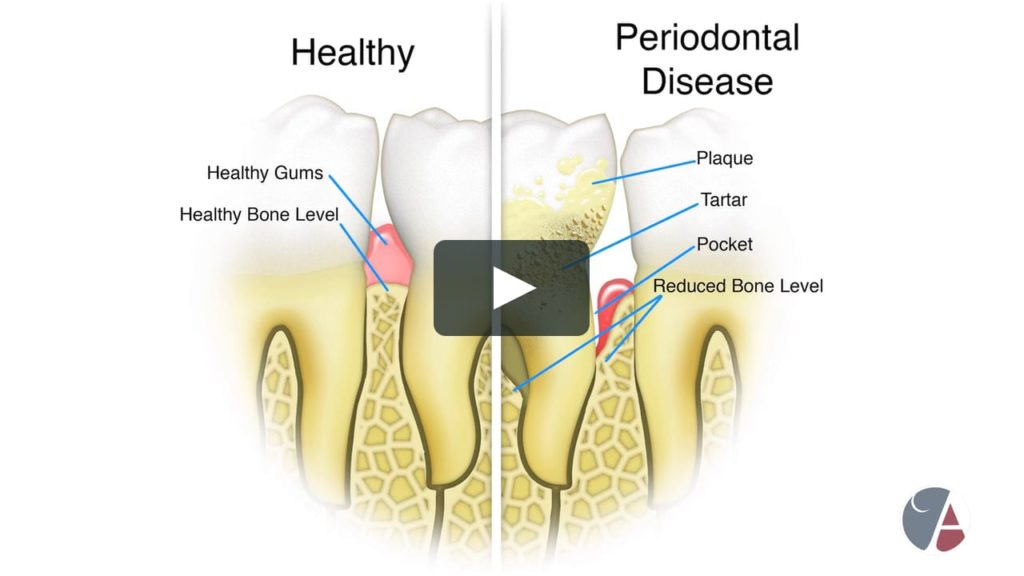 Healthy vs. Periodontal Disease Gums