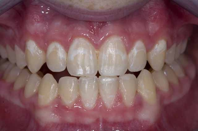 how to get stains off your teeth fast
