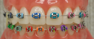 Braces-with-Colors-300x126