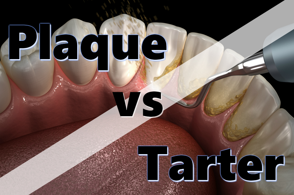 plaque vs tarter