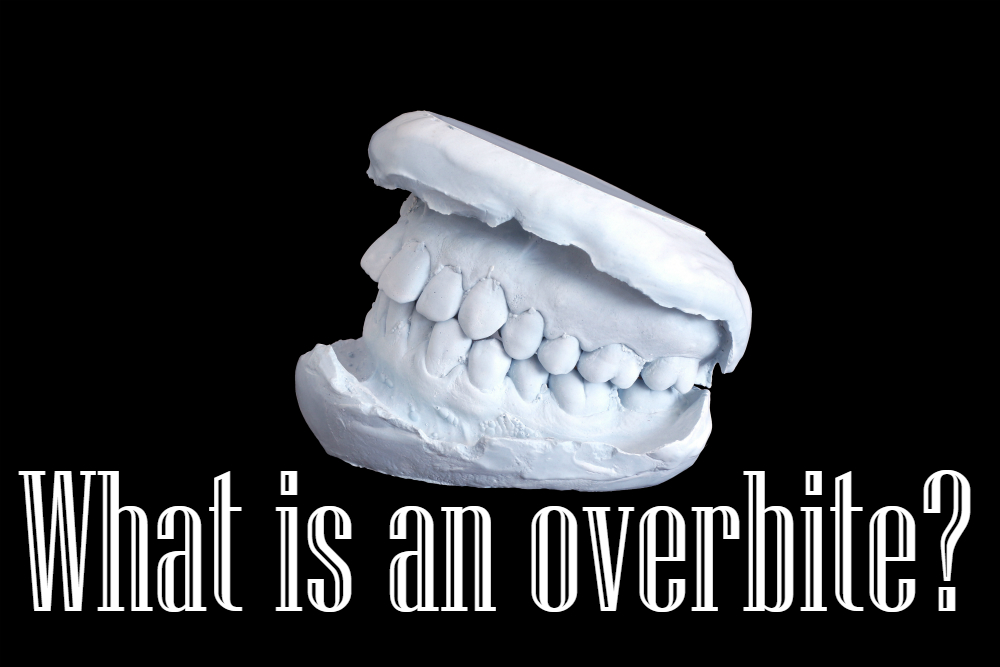 what is an overbite