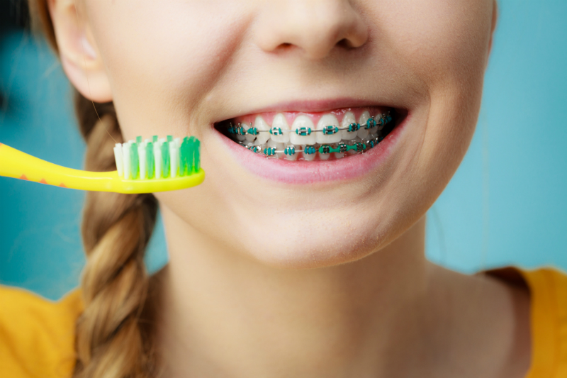 Oral hygiene for braces