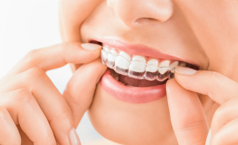 Use An Essix Retainer to Protect Your Smile
