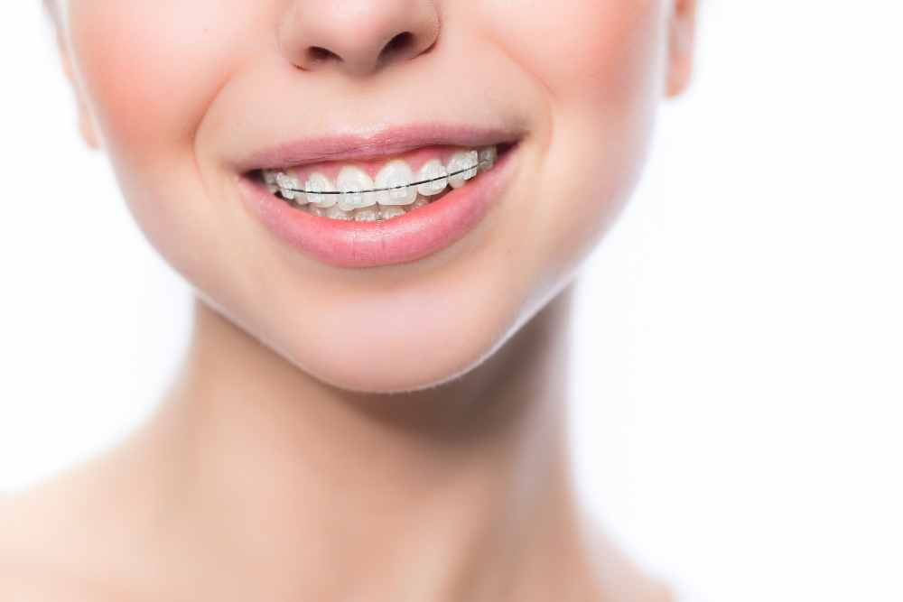 The Basic Principles Of How Do Braces Work