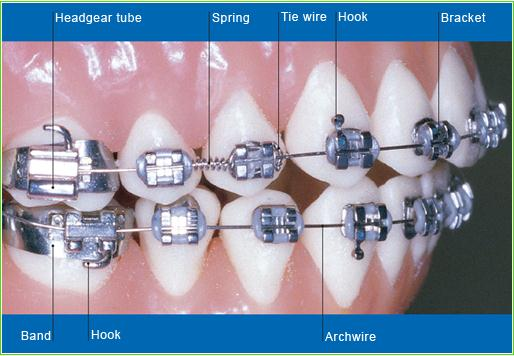 Pickering ontario orthodontist durham orthodontics 1 orthodontic bracket an orthodontic bracket is the main part of braces that help your teeth become straight there are different types of orthodontic ccuart Choice Image