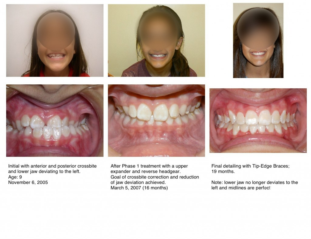 drnirenblatt Braces Early Treatment Underbite