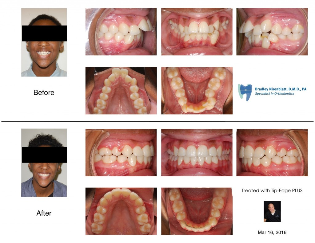 """Protruded and CrowdedTeeth Aligned With Braces and Extractions"""