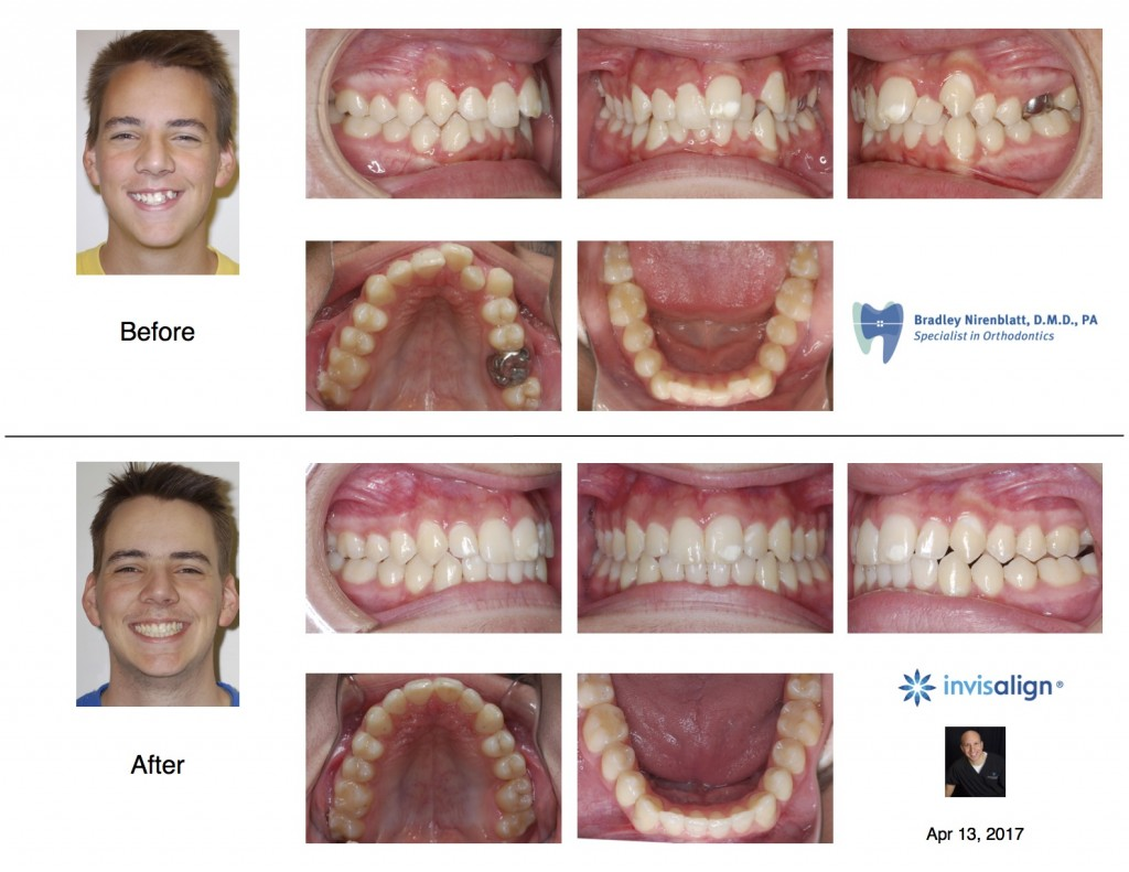 Invisalign Teen Extraction
