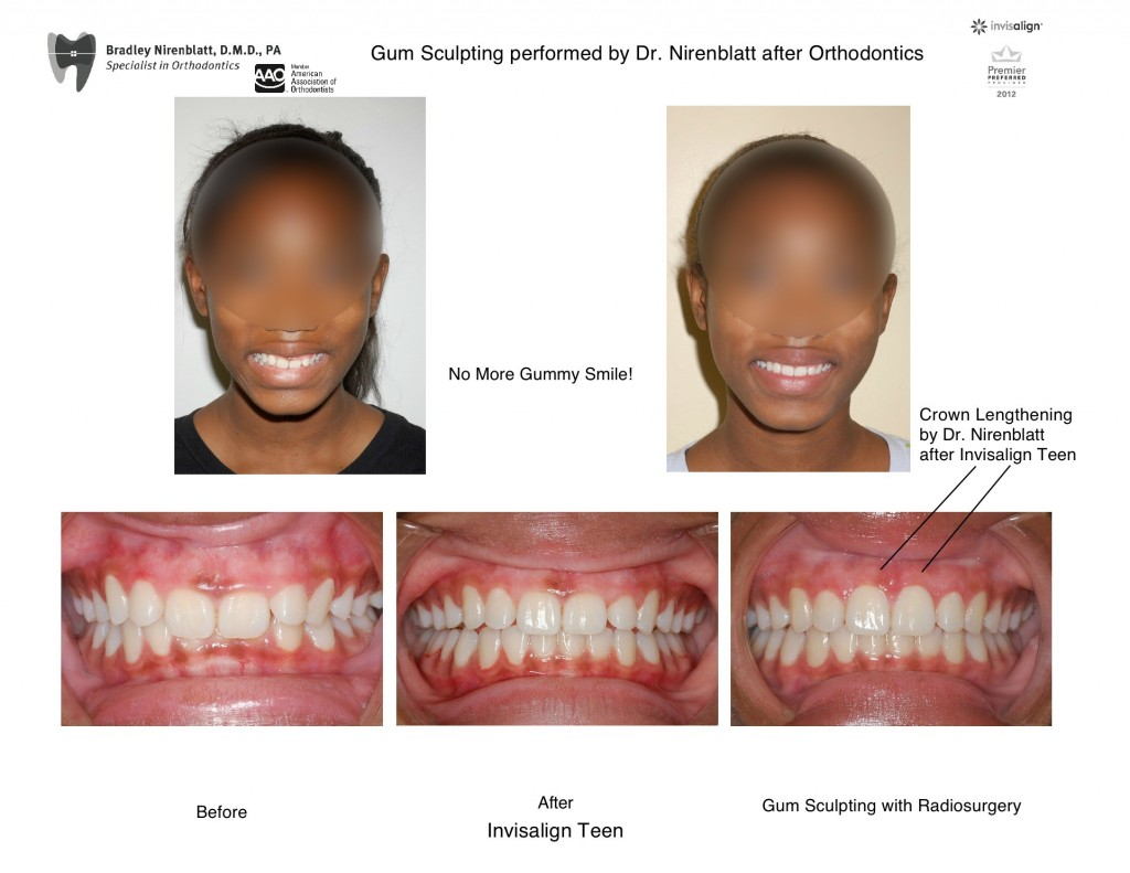 Invisalign Teen Gum Sculpting Radiosurgery